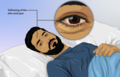 Depiction of a jaundice patient 01.png