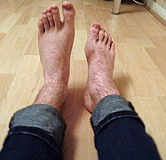 Foot drop.jpg