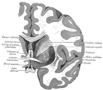 Commissural fiber - Coronal cross-section of brain showing the corpus callosum at top and the anterior commissure below
