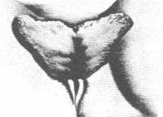 Elongated labia - Image: Inverted.apron
