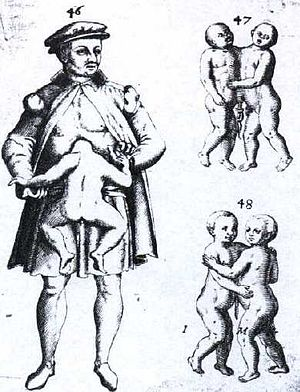 Parasitic twin - Illustration of a man with a parasitic twin, alongside illustrations of two configurations of conjoined twins.