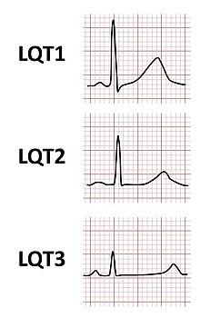 hipertenzijos sutrikimai hipertenzija smegenų vaizdavimas