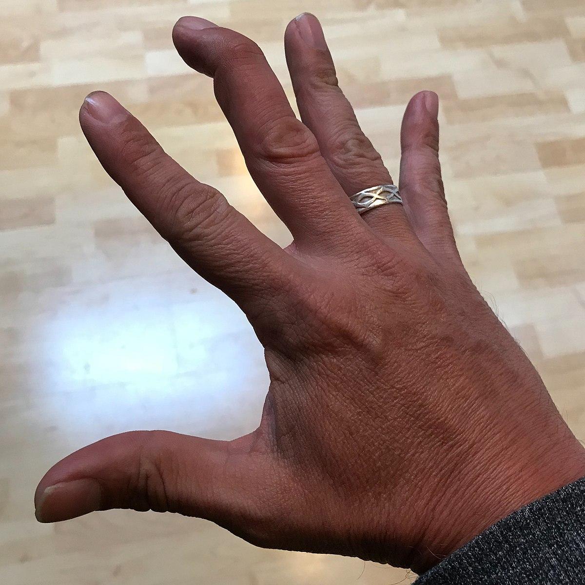 Mallet finger - Wikipedia