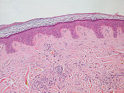 Normal Epidermis and Dermis with Intradermal Nevus 10x.JPG