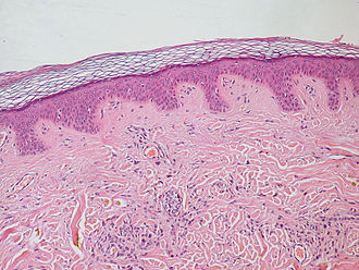 Loose connective tissue - Section of derimis. The papillary dermis consists of loose connective tissue.