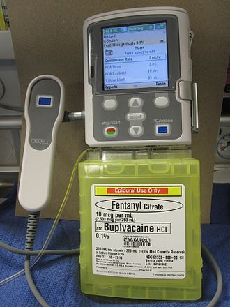 Patient-controlled analgesia - A patient-controlled analgesia infusion pump, configured for epidural administration of fentanyl and bupivacaine for postoperative analgesia