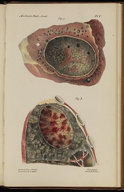 Plate V; Lungs of a young man who died of Tuberculosis 1834 Wellcome L0074280