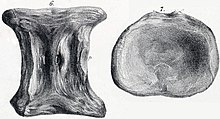 Drawing of a vertebra from two angles