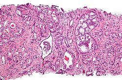 Prostate cancer with Gleason pattern 4 low mag.jpg