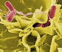 Microscopía electrónica de Salmonella typhimurium