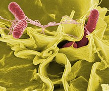 Color-enhanced scanning electron micrograph of red Salmonella typhimurium in yellow human cells