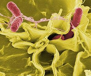 Sekundärelektronenmikroskopaufnahme von Salmonellen (rot eingefärbt)