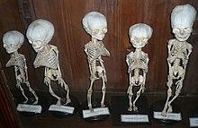 Оссификация — Википедия (с комментариями)    Оссификация скелета это