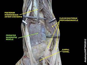 Pronator quadratus muscle - Image: Slide 2VVVV