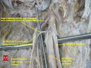 Superior cervical ganglion - Image: Superior cervical ganglion 1