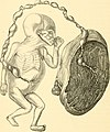 The science and art of midwifery (1897) (14763098122).jpg