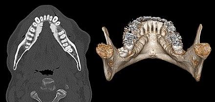 torus mandibularis wikiwand