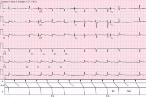 Karel Frederik Wenckebach - Sinus rhythm with acute inferior infarction complicated by Type I A-V block manifest in the form of 5:4 Wenckebach periods; R-P/P-R reciprocity.