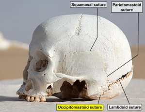 Occipitomastoid suture - Side view of the skull. Occipitomastoid suture labeled at bottom.