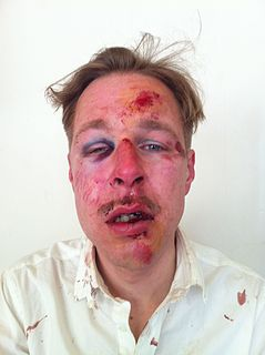 Violence against LGBT people Hateful actions towards sexuality or gender identity