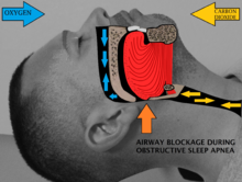 Man with sleep apnea.