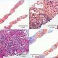 Alcoholic Liver Disease c1 2016 06 23.tif