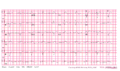 Brugada syndrome type1 example2 (CardioNetworks ECGpedia).png