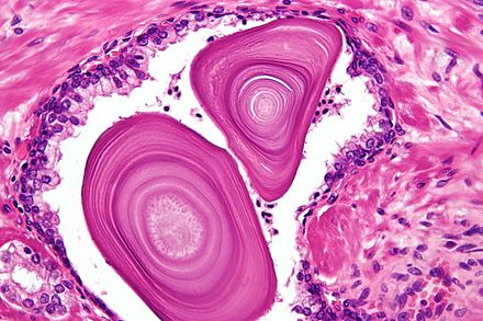 adenoma prostatae wikipedia