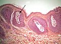 Demodex-infestation-hair-follicle.jpg