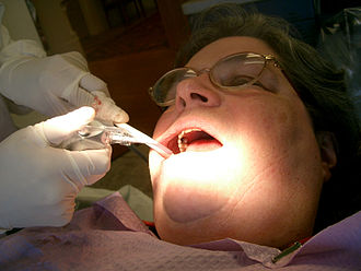 Dental hygienist - A dental hygienist at work