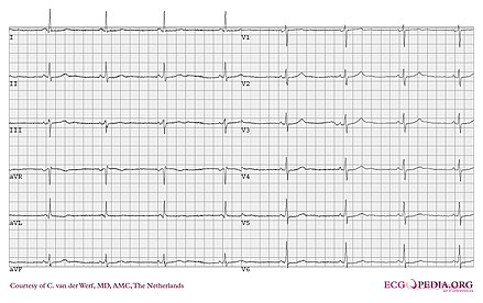 Catecholaminergic Polymorphic Ventricular Tachycardia Wikiwand