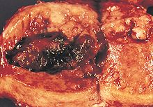 Image of the gross pathology of an endometrial adenocarcinoma