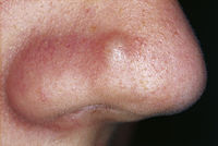 Fibrous papule of the nose 01.jpg