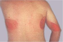 Large red patches of skin on the back and arm from multiple prolonged fluoroscopy procedures.