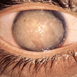 Gelatinous drop-like corneal dystrophy 1.JPEG