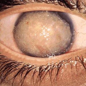 Corneal dystrophy - Corneal dystrophy, Gelatinous drop-like
