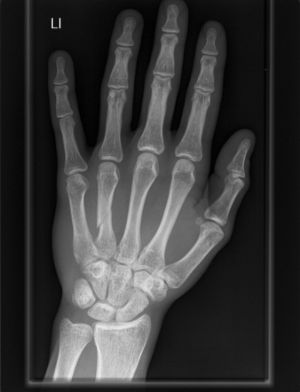 Carpometacarpal joint - X-ray of a human hand
