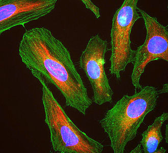 HeLa - Immunofluorescence image of HeLa cells grown in tissue culture and stained with antibody to actin in green, vimentin in red and DNA in blue