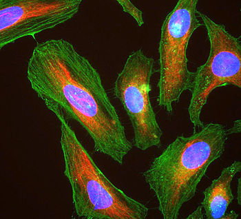 HeLa cells showing actin (stained green), vimentin (red) and DNA (blue)