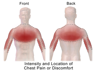 Chest pain discomfort or pain felt anywhere along the front of the body between the neck and upper abdomen