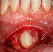 Tooth Impaction Wikipedia