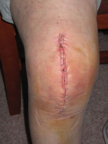 Knee Replacement wound which has been stapled closed