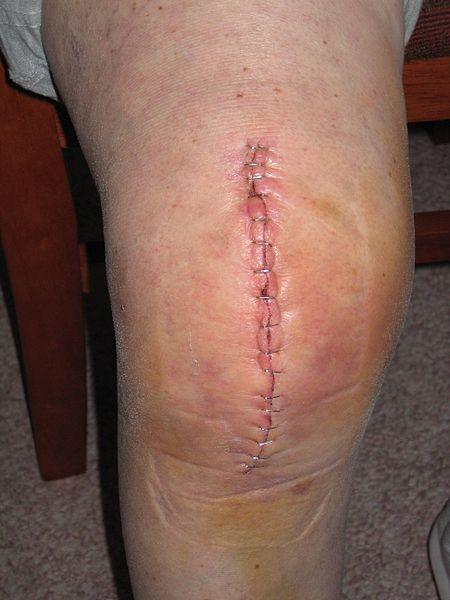 File:Knee Replacement.jpg