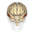 Middle temporal gyrus anterior.png