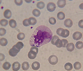 MonocyteVacuolatZoom.png