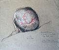 Otto Sohn-Rethel 15.04.1916 Verwundung Gewehrschuss Kopf, Blatt 21.JPG