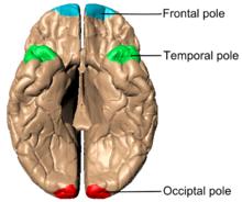 Cerebral hemisphere - Wikipedia