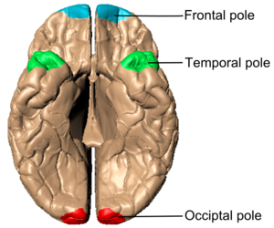 Cerebral hemisphere - Image: Poles of cerebral hemispheres (en) inferiror view