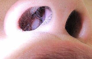 Nasal polyp polypoidal masses
