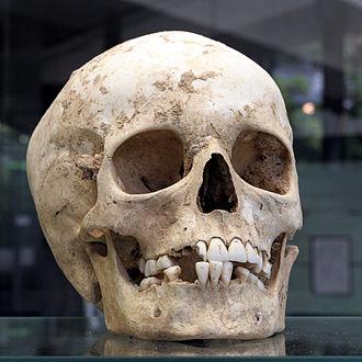 Herxheim (archaeological site) - Skull found in the archaeological site of Herxheim, exhibited in the museum of Heidelberg University
